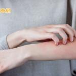 蜂膠保養品緩解肌膚乾燥? 皮膚科醫師分享換季保養祕訣