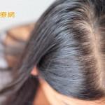 頭頂分線變寬、髮量稀疏 我的頭髮發生什麼事情了?